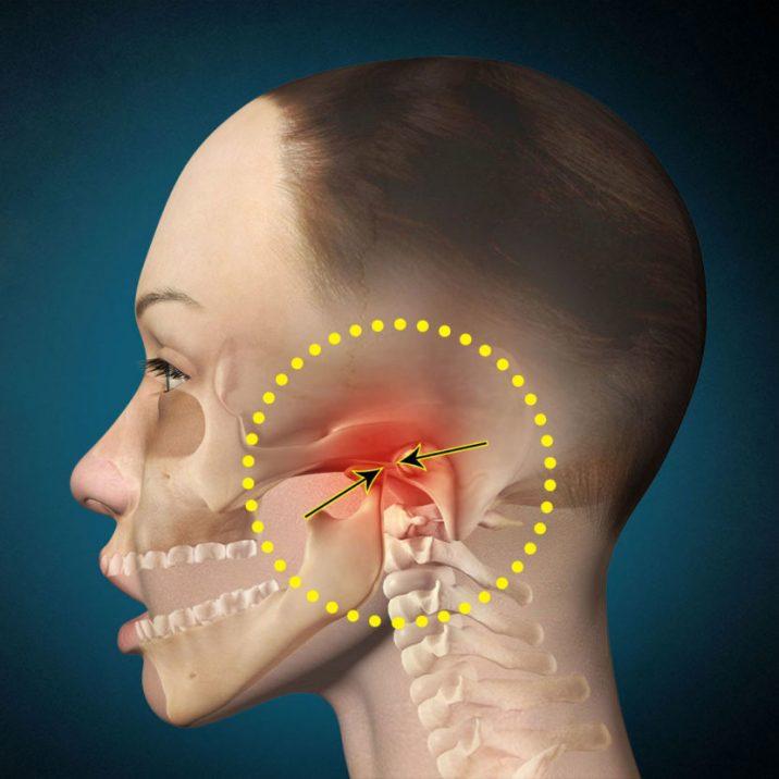 Миогимнастика при артрозе нижне челюстного сустава лечение чайи люкс суставной