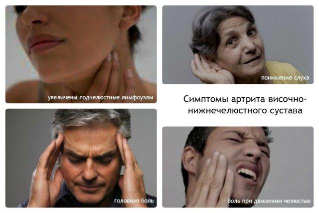 В большинстве случаев пациенты отмечают боль непосредственно в области воспаленного сустава
