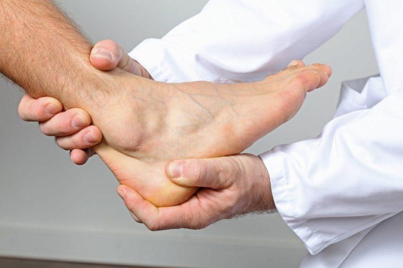 Артрит голеностопного сустава как определить Причины лечение