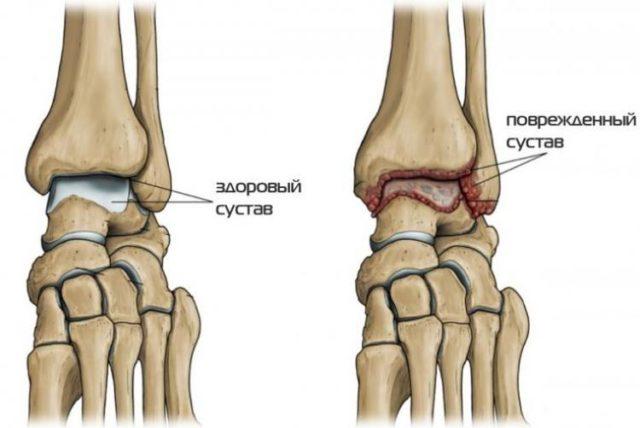 Поражение голеностопного сустава при артрите может быть односторонним (травма, инфекция), двухсторонним (системная патология) и мигрирующим (подагра)