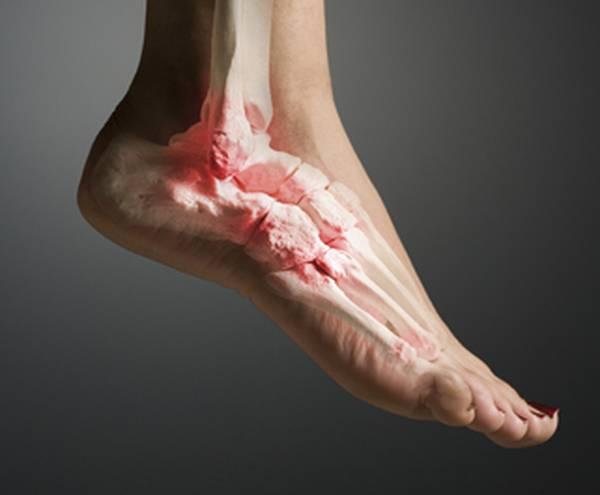 Наиболее типичными формами поражения голеностопного сустава служат подагрический, реактивный, посттравматический, псориатический и ревматоидный артрит