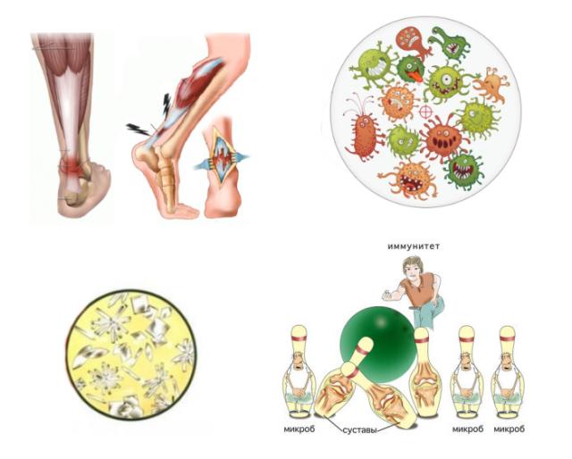 Реактивный артрит голеностопного сустава, возникающий после бактериальных и вирусных инфекций, связан с повышенной иммунной реакцией на антигены возбудителя