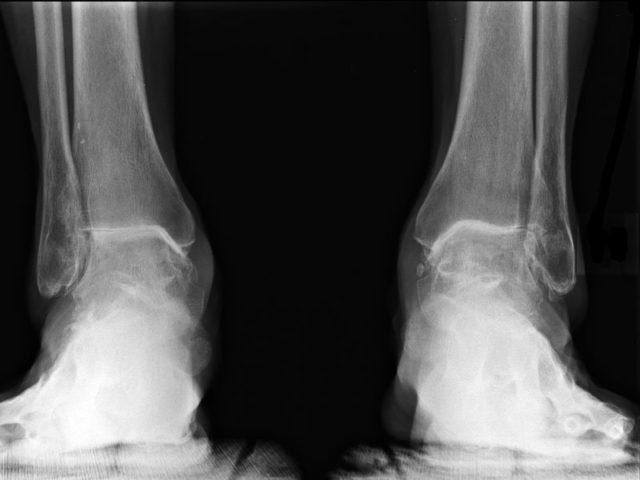 МРТ голеностопного сустава более информативна, т. к. выявляет даже незначительные отклонения от нормы