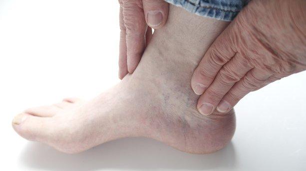 Артрит голеностопного сустава – воспалительно-деструктивное поражение элементов голеностопного сустава различного генеза