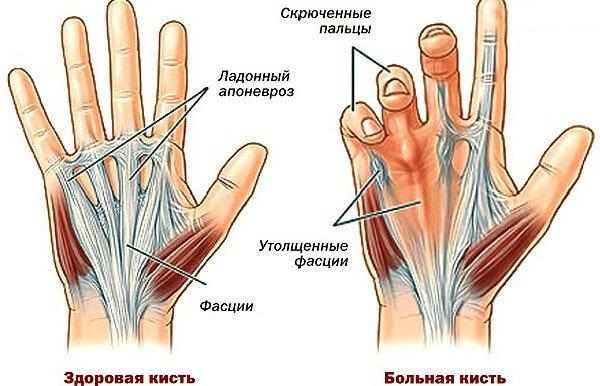 Артрит кистей и пальцев является часто встречающимся заболеванием
