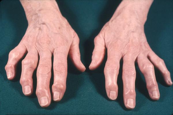Лечат его нестероидными противовоспалительными средствами, но иногда их применять нельзя или делать это весьма осторожно
