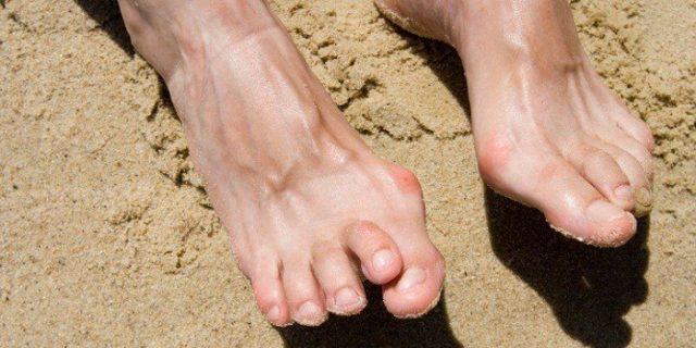 Спустя некоторое время из-за постоянного воспаления суставы деформируются, и поэтому часто больные становятся инвалидами