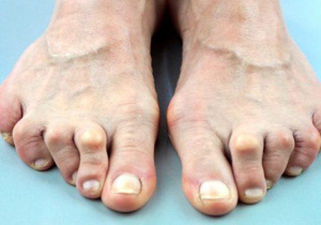 Артрит пальцев ног – ревматоидное заболевание, воспалительный процесс, приводящий к поражению большого пальца стопы