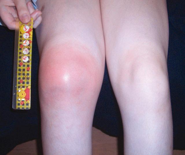 Ревматоидный артрит у детей может протекать в суставной форме