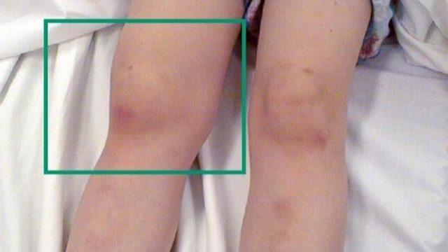 Понятием «артрит у детей» объединяются различные по происхождению и течению заболевания