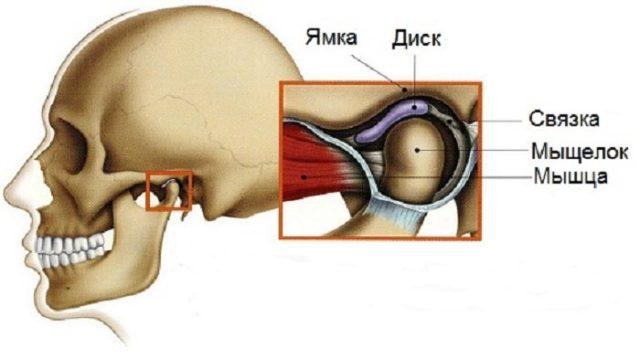 При артрозе ВНЧС происходит истончение хрящевого сустава, что приводит к болезненным ощущениям в процессе открывания и закрывания рта