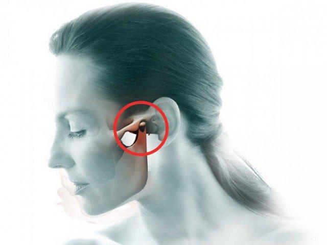 Артроз ВНЧС - хроническое заболевание, вызванное дистрофическими процессами в тканях сочленения