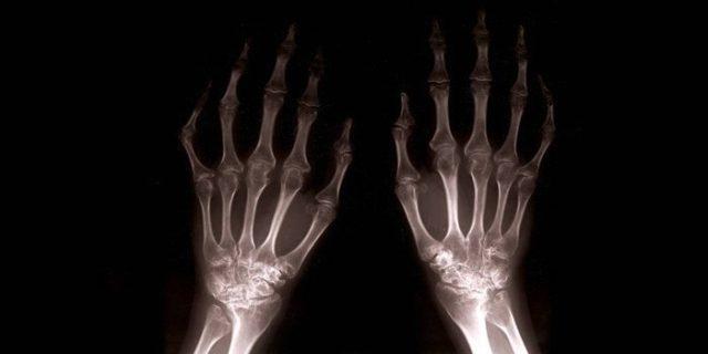 Рентгенограмма выполняется в двух проекциях – прямой и боковой
