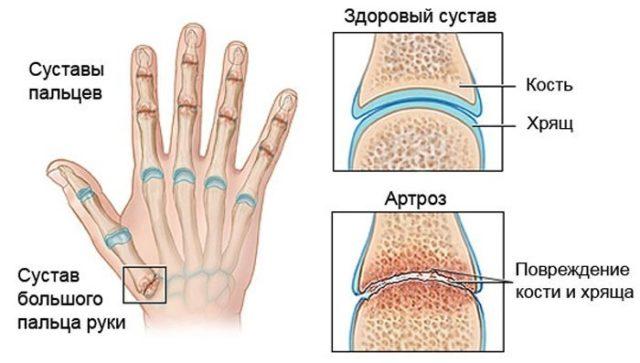 Артроз кистей рук считается болезнью пожилых людей, на самом деле это не всегда соответствует истине