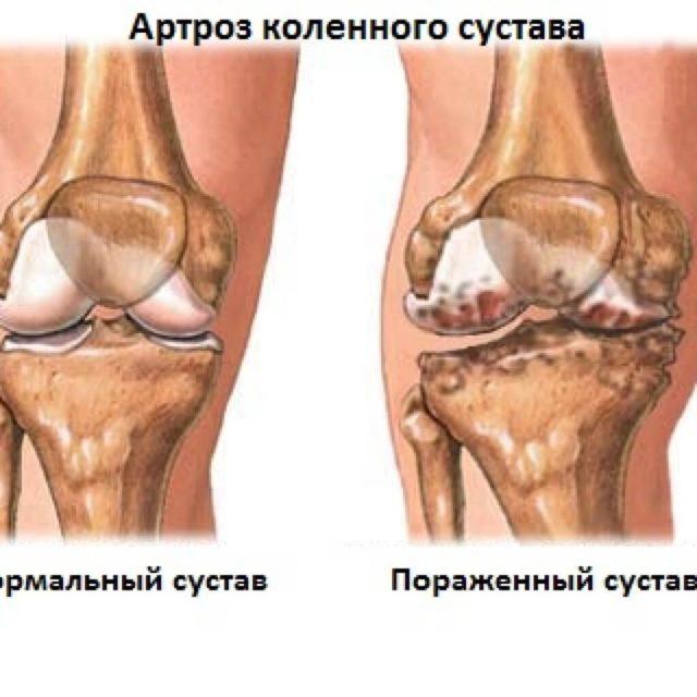 Такой сустав при ходьбе подвергается несоразмерной своим возможностям нагрузке, которая и провоцирует дегенеративные изменения в нем