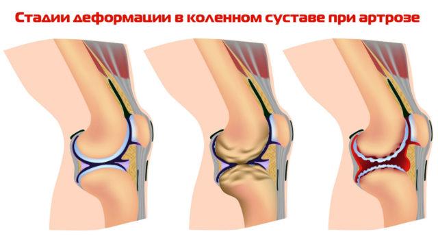 Боли в коленном суставе часто вызваны переменой погодных условий