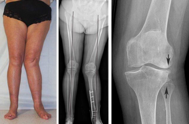 Для уточнения диагноза больной должен пройти УЗИ-диагностику с целью исключения артрита и измерения высоты суставного хряща