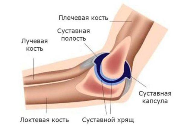 Важной характеристикой артроза является то, что при его возникновении происходит охват всех элементов сустава, включая синовиальную капсулу