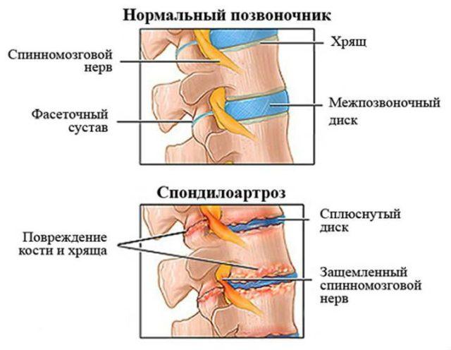 Повторные перегрузки приводят к новым микротравмам, растягиванию суставной капсулы и дегенерации хряща