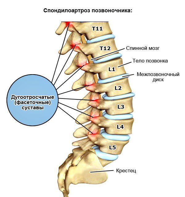 Недостаток хряща, а также сужение межсуставного пространства в позвоночнике часто становится причиной защемления спинных нервов