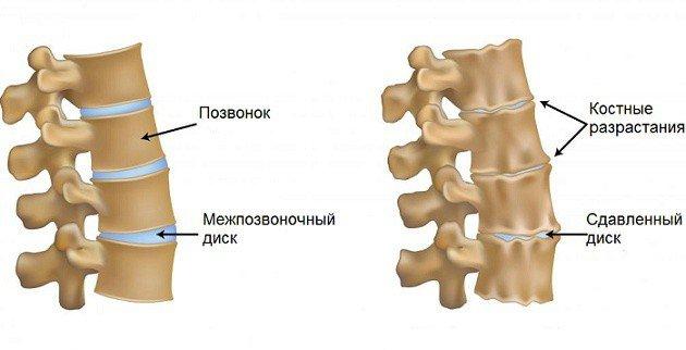 Артроз позвоночника классифицируют на первичный (идиопатический) и вторичный