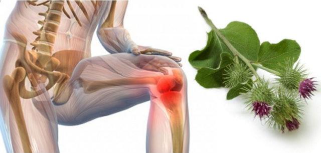 Компрессы в лечении артроза и способы их применения