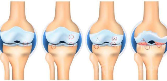 На последних стадиях заболевания развивается выраженная деформация коленного сустава