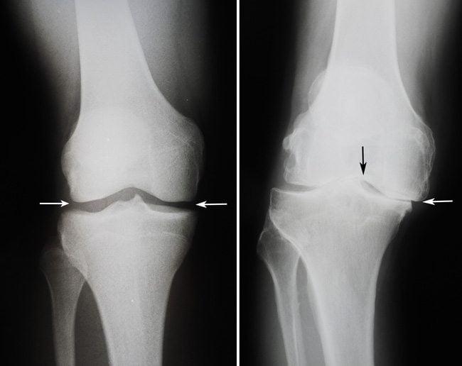 Может выявляться анкилоз (сращение костей между собой)