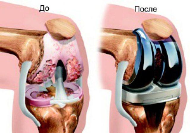 ДОА коленного сустава в запущенных случаях требует эндопротезирования сустава