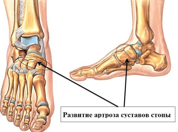 На боковых, либо передних или задних отделах суставной поверхности выявляется небольшое разрастание костной ткани