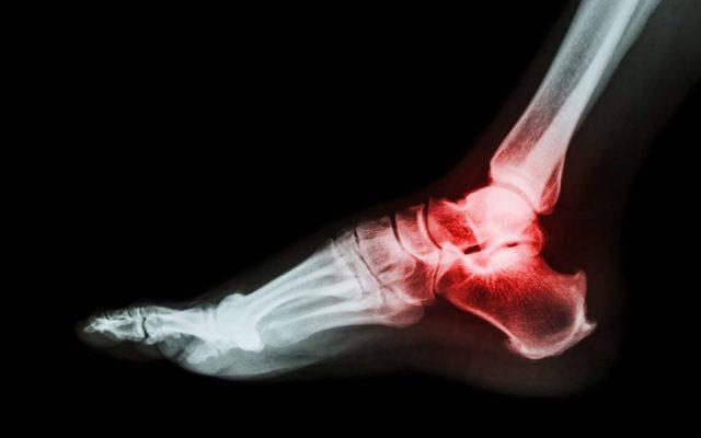 Появляется ноющая боль в области сустава даже при отсутствии движения