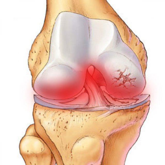 Гнойный артрит – воспалительный процесс в полости сустава, вызываемый гноеродными микробными агентами