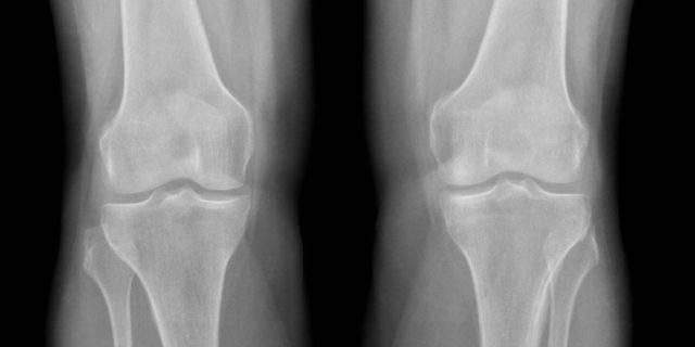 По результатам которого подтверждается диагноз, выявляется стадия патологического процесса и отслеживается динамика развития такового