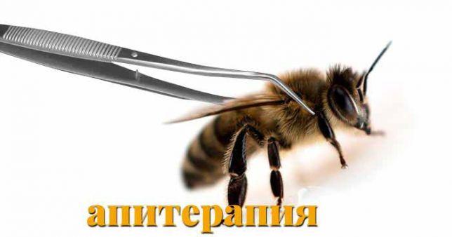 Местноанестезирующие свойства этого продукта пчеловодства используются официальной медициной