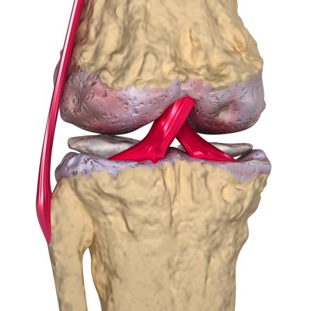 Характеризуется длительным течением, диагностируется чаще всего у пациентов среднего возраста