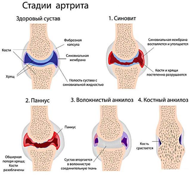 Если артроз не лечить – то в результате фаланги пальцев искривляются, возникают очень сильные болезненные ощущения