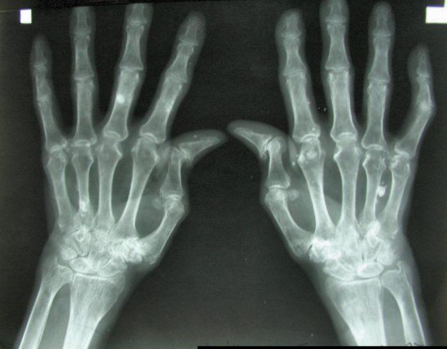 На рентгенограмме выявляют сужение суставной щели, склероз костной ткани