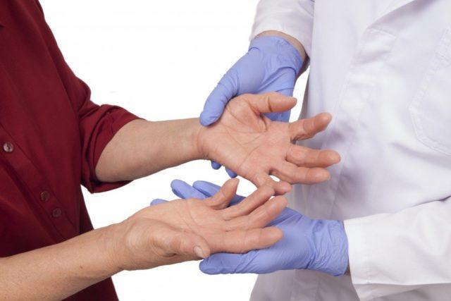 При ревматоидном артрите наблюдается хроническое воспаление суставов конечностей