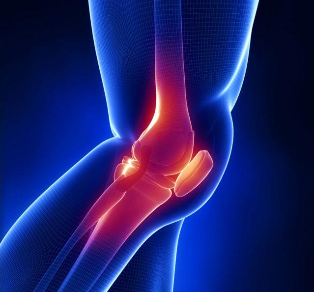 Но при любом виде недуга всегда отмечаются общие признаки: боль, отек, деформация и нарушение двигательной функции сустава