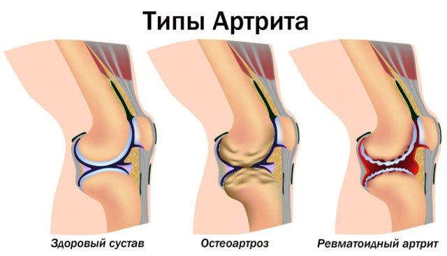 Нарушается подвижность, ребенок прихрамывает во время ходьбы или отказывается ходить из-за болей
