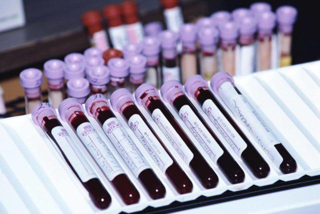 Для уточнения этиологии артрита у детей проводятся лабораторные исследования