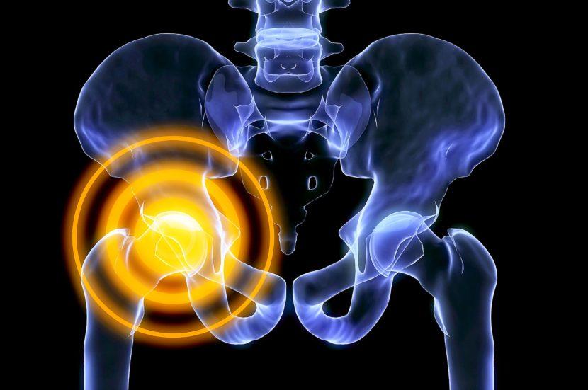 Как лечить синовиальные воспаления тазобедренного сустава