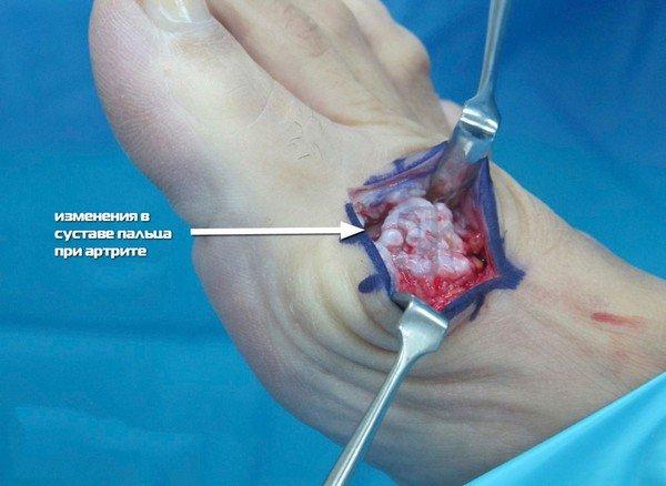 Различают несколько видов операций при артрозе большого пальца ноги