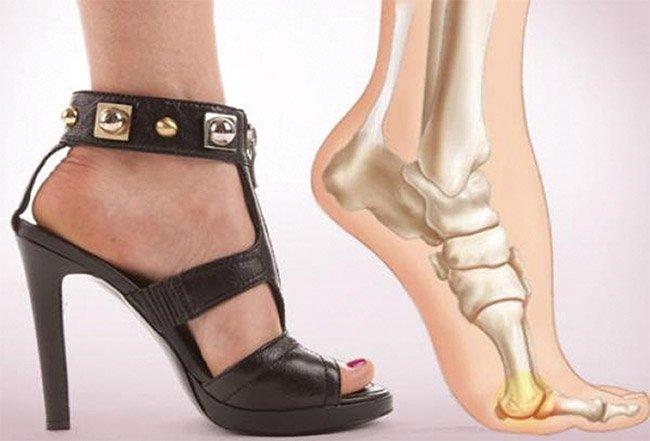 Повреждения стопы, большого пальца ноги