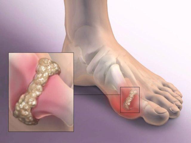 Это деформация сустава и патологические изменения, в результате которых гиалиновый хрящ теряет свою упругость, возникает воспаление мягких тканей