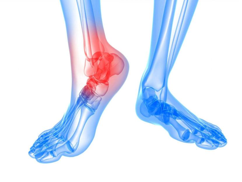 Подагрический артрит (Подагра): лечение и симптомы