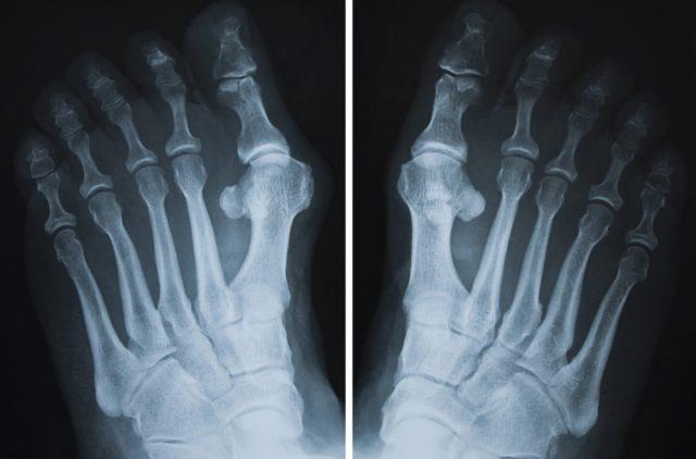 На ранних стадиях рентгенография, как правило, не проводится