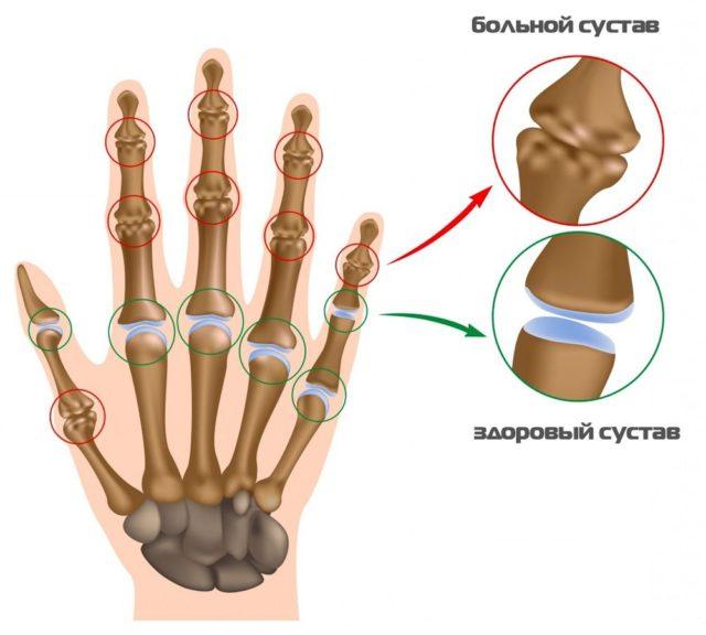 Патология обусловлена скоплением мочевой кислоты в суставах, что и провоцирует развитие воспалительного процесса