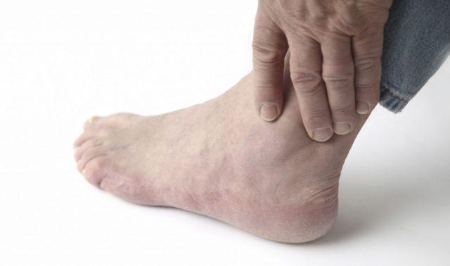 В большинстве случаев подагрический артрит поражает мелкие суставы