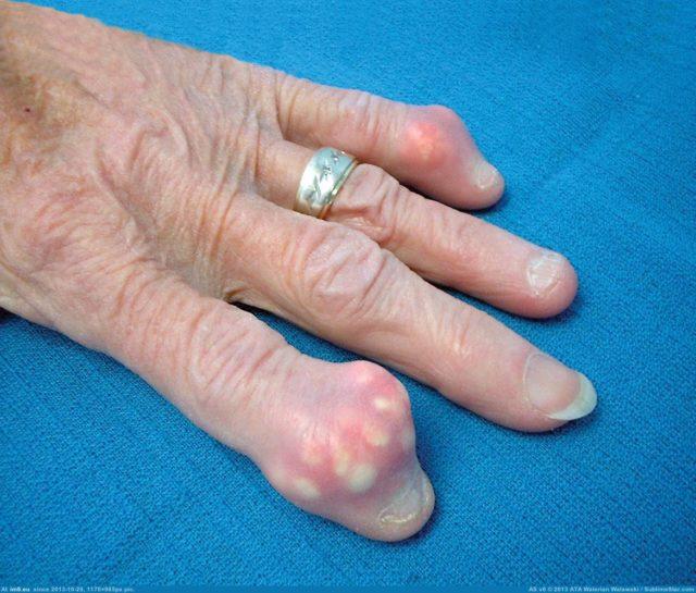 Появление вокруг суставов, которые воспалялись, белесоватых подкожных разрастаний (тофусов)Длительное течение воспаления при подагре приводит к образованию тофусов (подкожных узелков) вокруг суставов